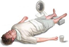 Actuación ante agotamiento por calor. ADAM