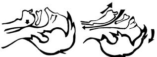 Bloqueo de las vías respiratorias por la caída de la lengua y desbloqueo mediante hiperextensión del cuello