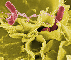 Salmonella in coltura su cellule umane