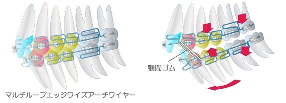 矯正装置のイラスト図:マルチループエッジワイズアーチワイヤーや顎間ゴムを装着した図