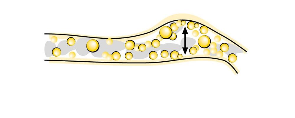 Lecicarbon®-Zäpfchen entwickeln im Enddarm feinperlige Mikrobläschen aus Kohlendioxid.