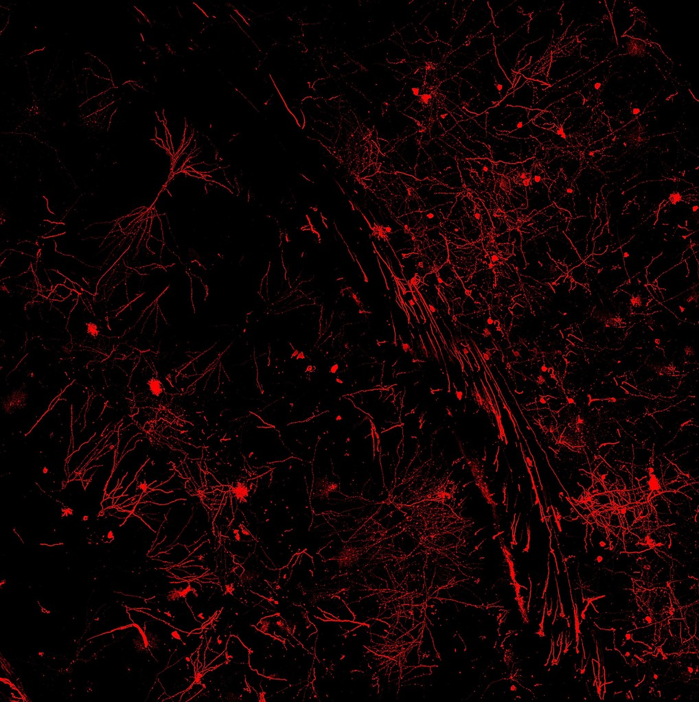 DiI staining of the mouse hippocampal slice using the Gene gun. Mosaic picture of 1500x1500 um individual pictures employong the Matrix (LasAF ; Leica) controlling a SP5 confocal microscope. Photo: N. Domínguez-Iturza & L. Enríquez & G. Mata