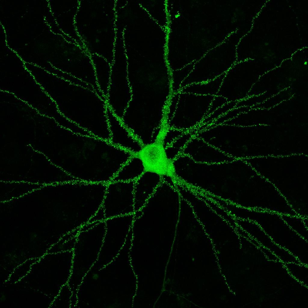 Hippocampal neuron in culture transfected with an Actin-GFP vector. Photo: L. Enríquez-Barreto & G. Cuesto.