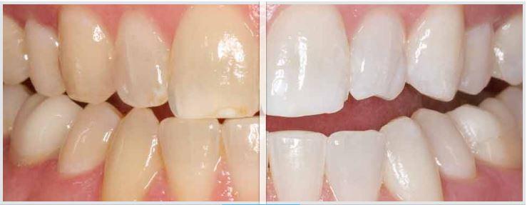 Bleaching - Zähne bleichen mit Opalescence
