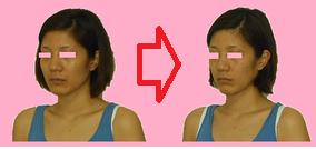 鼻専門矯正