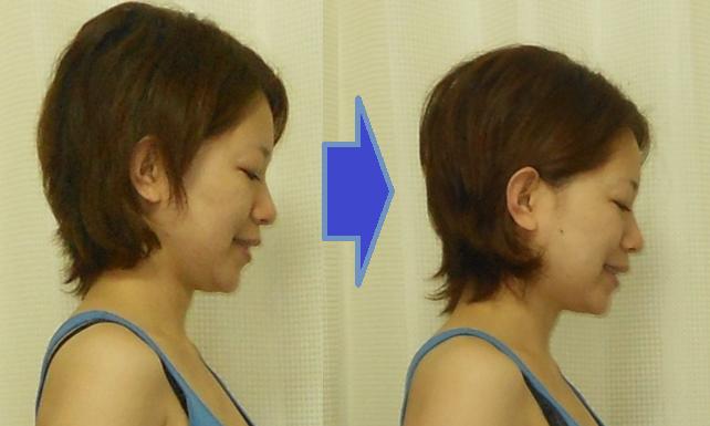 出っ歯 上顎 矯正 頭蓋骨矯正 福岡 前後変化