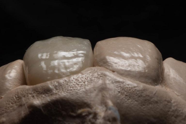 当院の前歯のセラミックス治療について