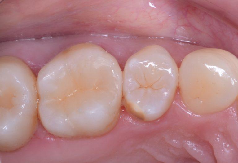 奥歯のセラミックス治療について