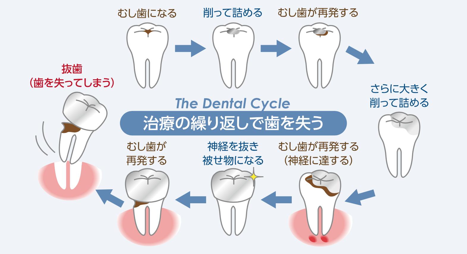 即日で銀歯を白い歯に!? 〜ダイレクトボンディング〜