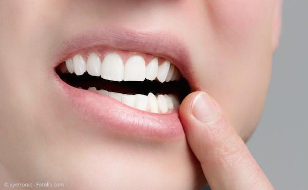 Eine Laser-Behandlung wirkt gegen Herpes (Lippenbläschen) und schmerzhafte Aphthen.