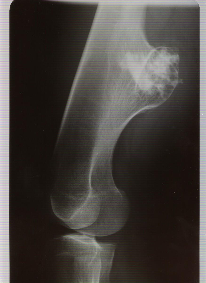 Röntgen-Aufnahme / Bild 2