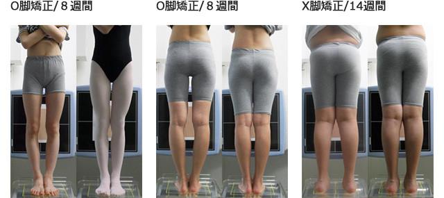 O脚矯正/8週間、 O脚矯正/8週間、X脚矯正/14週間