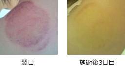 吸い玉、消えるまでの色の変化(翌日~施術3日後)