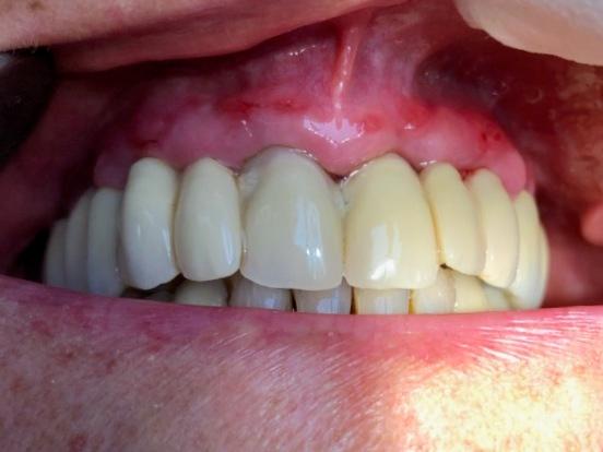 Cicatrisation 3 semaine post-opératoire