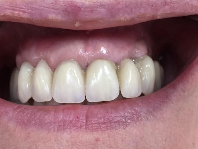 Cicatrisation à 15 jours