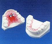 スプリント(顎関節症の緩和)