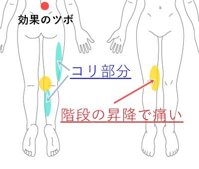 膝に水が貯まる