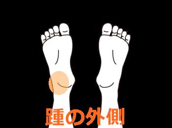 マラソンでの踵の痛み