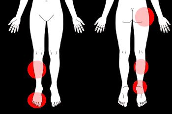 変形性股関節症のツボ