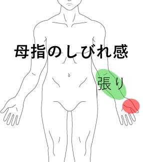 親指の痺れ