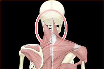 項のこりが頚性めまいを起こします
