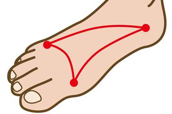 モートン病の鍼をする場合、足裏の横アーチがポイントになります。