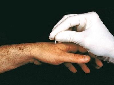 Raucherentwöhnung mit Homöopathie – alle Details