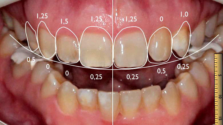 DSD Digital Smile Design nach Christian Coachman - dental emotions GmbH Zahntechnik Dentallabor