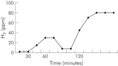 Graph des Anstiegs im Lactulose-Atemgastest mit typischer Doppelspitze.