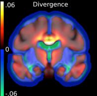 Divergence du flux de déformation dans l'évolution de la maladie d'Alzheimer: la couleur représente les régions changeant de volume