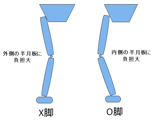 X脚とO脚