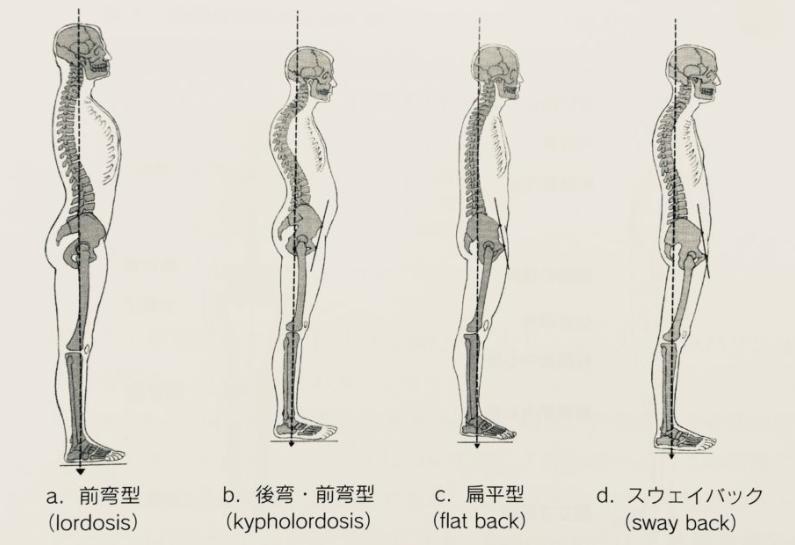 4つの姿勢分類