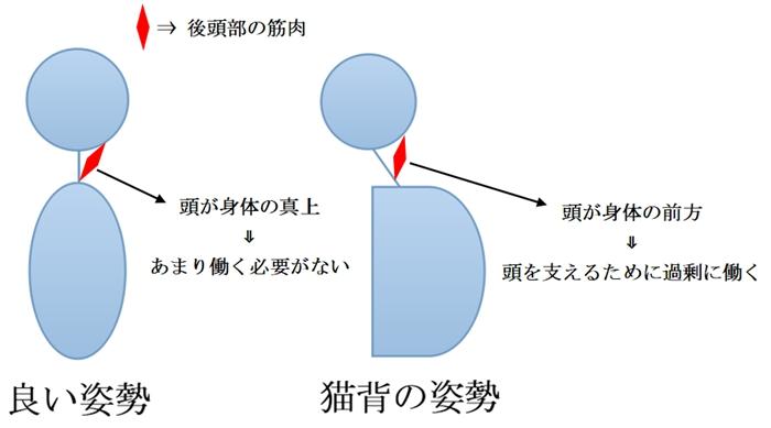 姿勢と後頭部の筋肉の関係