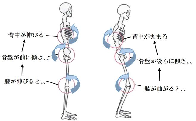 膝の形と姿勢対応