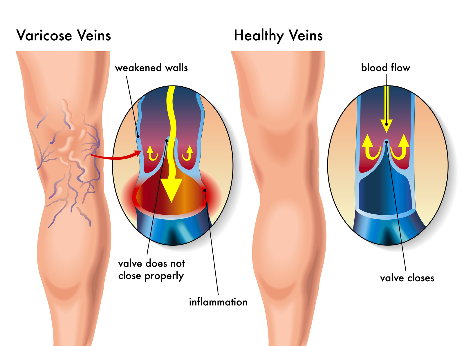 Varicose veins are veins that are not working properly and allow blood to pool in the legs, causing pain, discomfort and bulging veins.