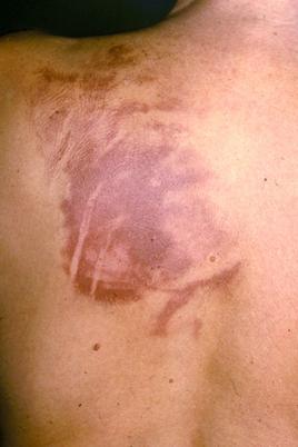 Postentzündliche Hyperpigmentierung durch Kratzen bei Notalgia paraesthetica