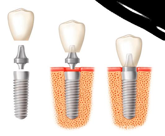 Implantate Wilmersdorf