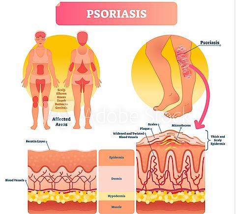 Die Schuppenflechte ist eine nicht ansteckende Autoimmunerkrankung der Haut oft auch mit Gelenkbeteiligung.