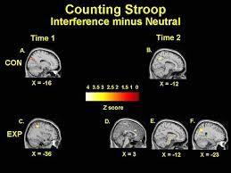 Fig. 3. Imagenes de la RMF de dos grupos, uno control y otro de niños con TDAH antes y después de entrenar con neurofeedback (sólo este último grupo).