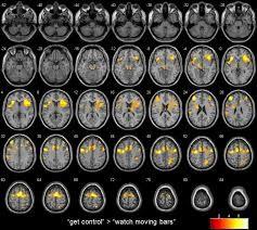 Fig. 1. Imágen de Resonancia Magnética Funcional (RMF) cuando se está realizando una tarea.