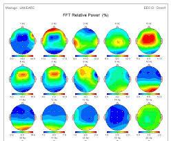 Fig. 2. Mapas de la potencia relativa de frecuencias individales de la AEC.
