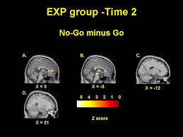 Fig. 4. Imágen de RMF del grupo con TDAH después de entrenar con neurofeedback, al hacer una tarea que impica inhibición de la conducta.