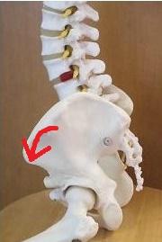 ヘルニア腰痛の原因