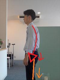 歩き方が悪く骨盤の歪んだ男性