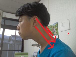 頸椎症で痛くて寝れない奈良県香芝市の男性