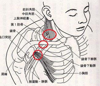 肩こりと腕の痛み痺れの原因