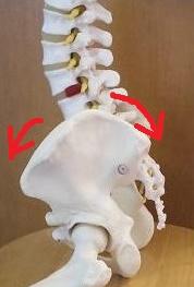 頸椎ヘルニアや頚椎症の原因