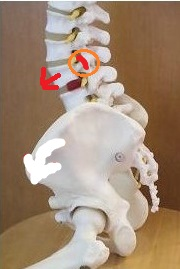 すべり症で腰が痛い奈良県御所市の男性