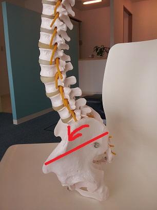 骨盤前傾の反り腰