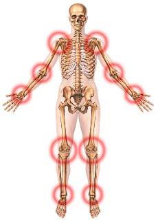 Lesiones de articulaciones